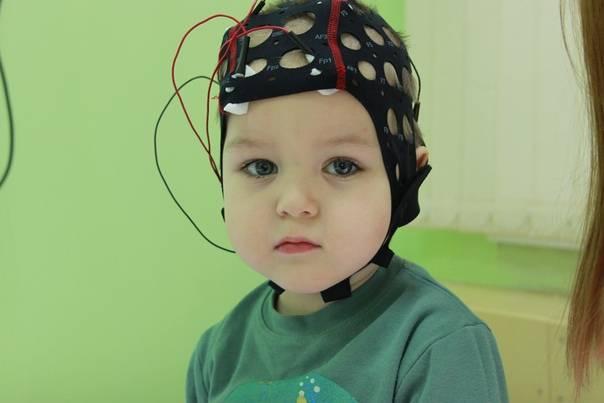 5 основных лечебных эффектов транскраниальной микрополяризации у детей