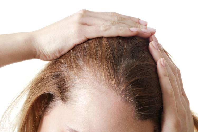 Как избежать выпадения волос?