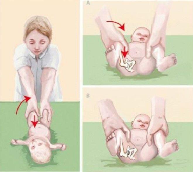 Дисплазия тазобедренных суставов у младенца