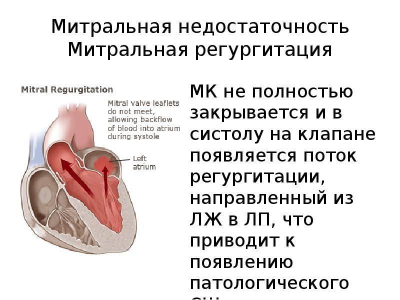 Пролапс митрального клапана - симптомы болезни, профилактика и лечение пролапса митрального клапана, причины заболевания и его диагностика на eurolab