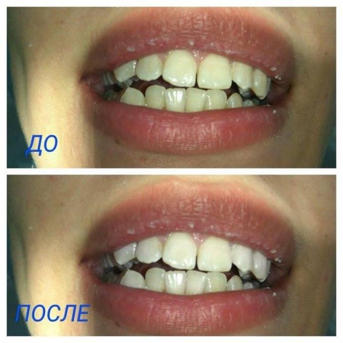 Фторирование зубов: цены в стоматологической клинике доктор мартин в москве