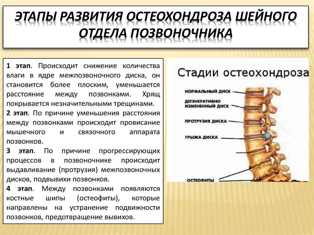 Остеохондроз шейного отдела при беременности: симптомы, лечение и профилактика