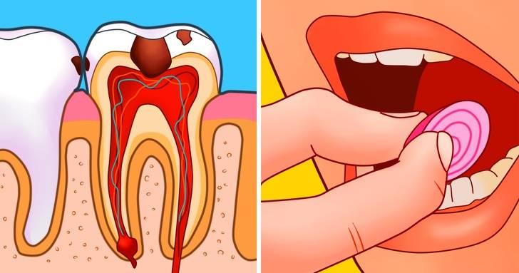 Чем и как снять зубную боль в домашних условиях - стоматология вита-стом