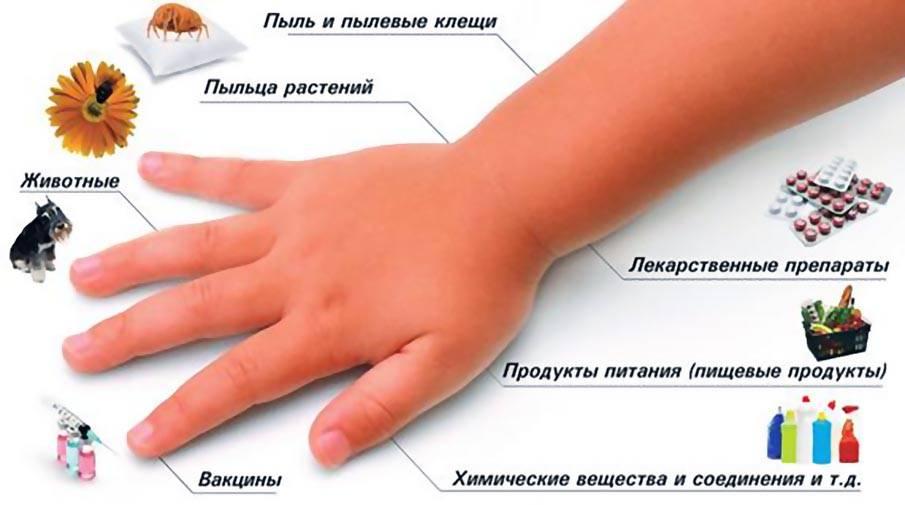 Пищевая аллергия у детей - симптомы, способы лечения, диета