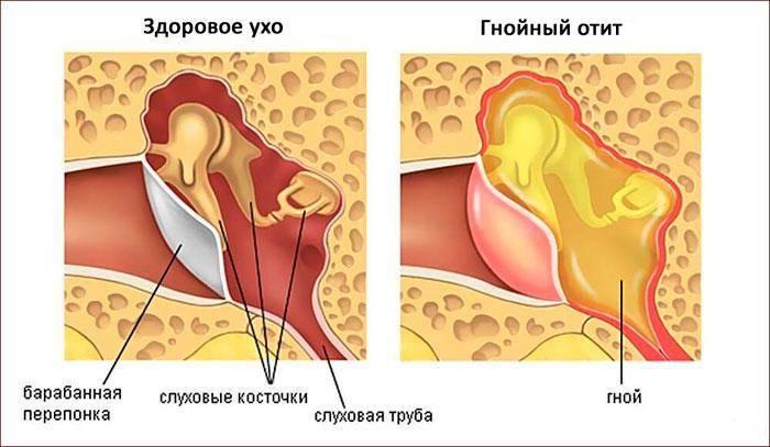 Хронический средний отит (мезотимпанит/эпитимпанит)