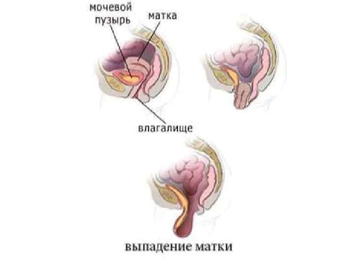 Профилактика опущения матки