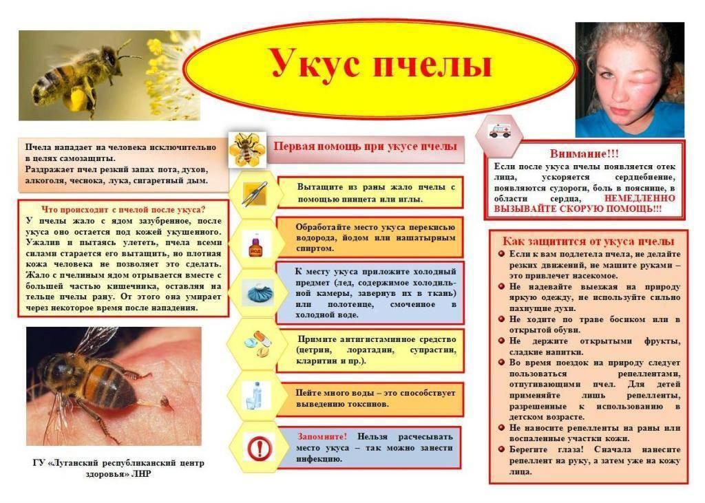 Укусы ног насекомыми