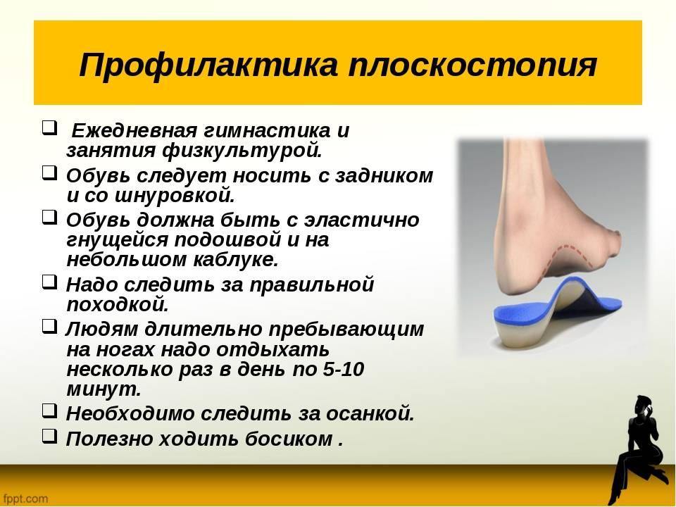 Плоская стопа: можно ли исправить плоскостопие у ребёнка? | здоровье | аиф красноярск