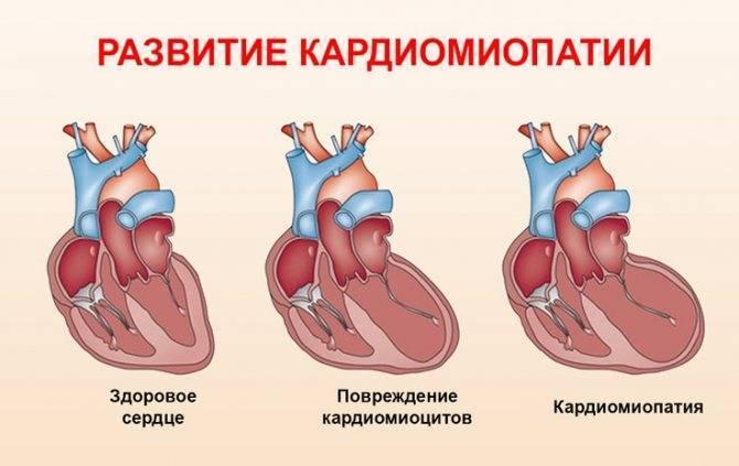 Диагностика дилатационной кардиомиопатии у детей