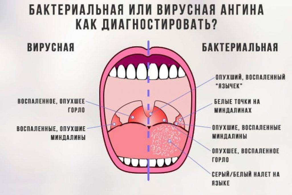 5 ошибок при увеличении губ гиалуроновой кислотой