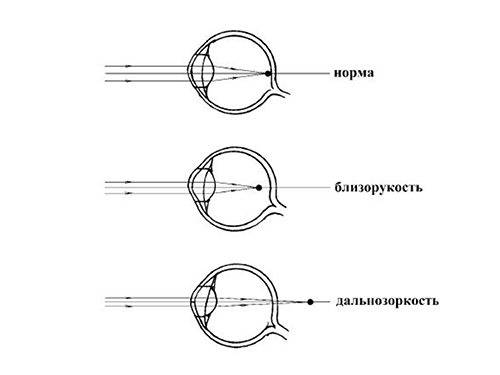 Диагностика истинной миопии и близорукости из-за спазма аккомодации
