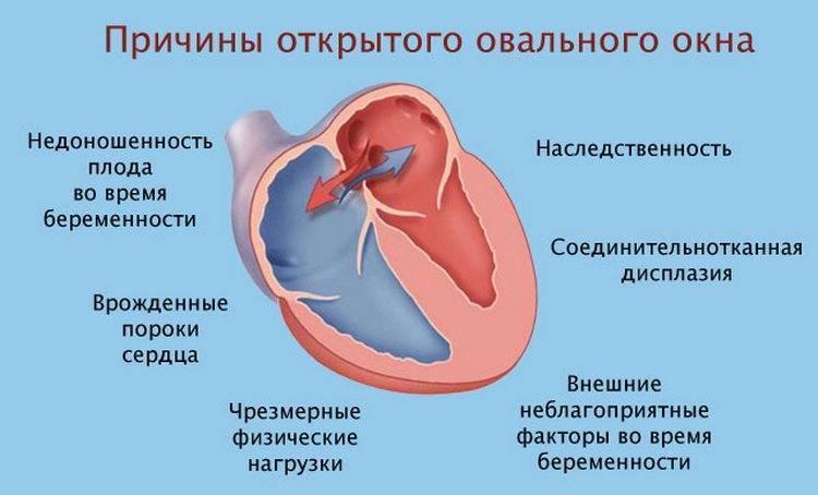 Когда должно закрыться овальное окно в сердце у ребенка?