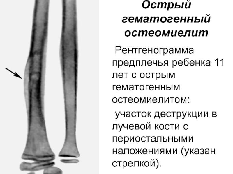 Остеомиелит челюсти   симптомы и лечение остеомиелита челюсти   компетентно о здоровье на ilive