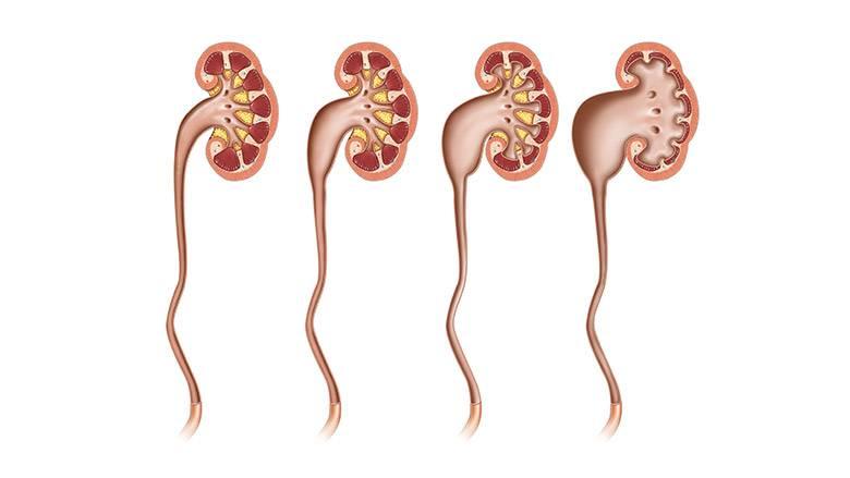 Если при ультразвуковом исследовании найдено расширение почечных лоханок (пиелоэктазия)   центр медицины плода