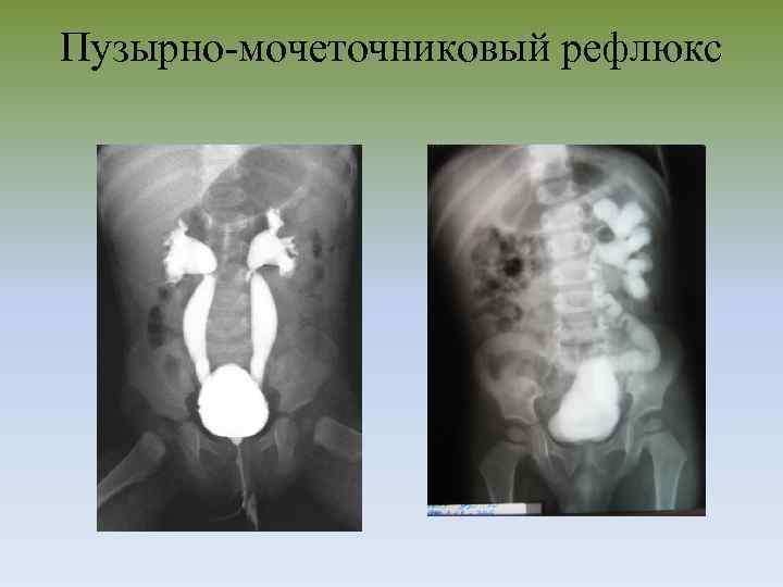 Нмиц онкологии им. н.н. блохина - структура