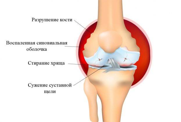 Боль в коленях у подростков: лечение в москве