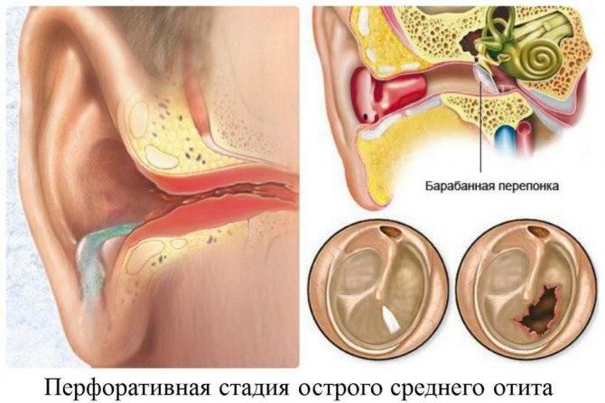 Тимпанит. причины, симптомы и лечение