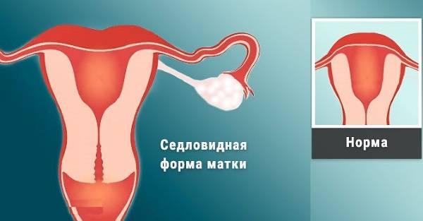 Воспалительные заболевания органов малого таза (взомт)