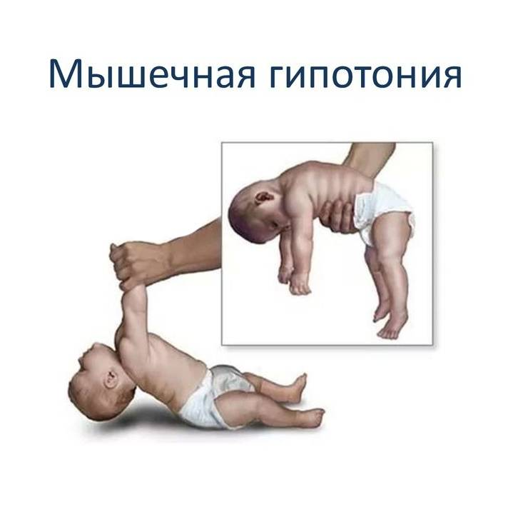 Гипотония у детей - симптомы болезни, профилактика и лечение гипотонии у детей, причины заболевания и его диагностика на eurolab