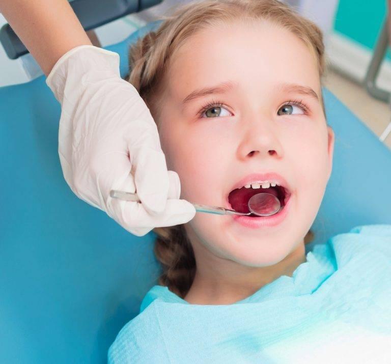 Лечение пульпита молочного зуба в два посещения, лечение пульпита у детей.