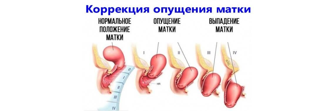 Пролапс тазовых органов у женщин - клиника марины рябус