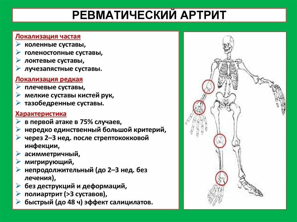 Ревматизм: симптомы, лечение, фазы, диагностика, причины, профилактика
