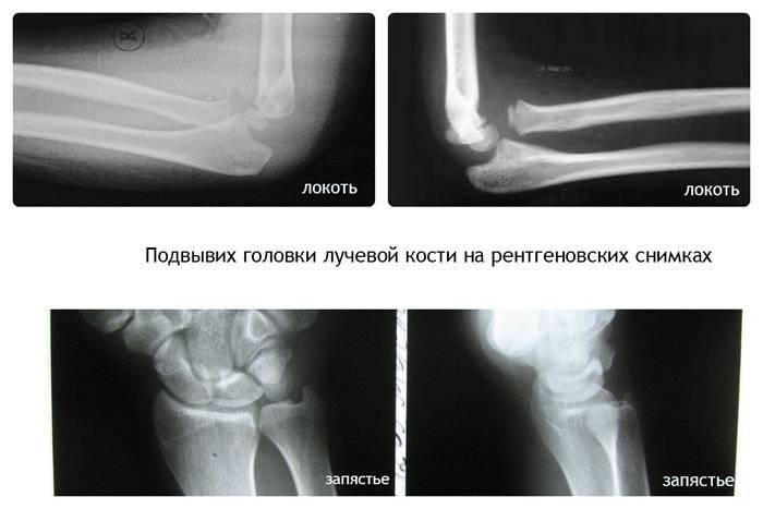 Перелом лучевой кости в типичном месте: причины, симптомы, диагностика, лечение