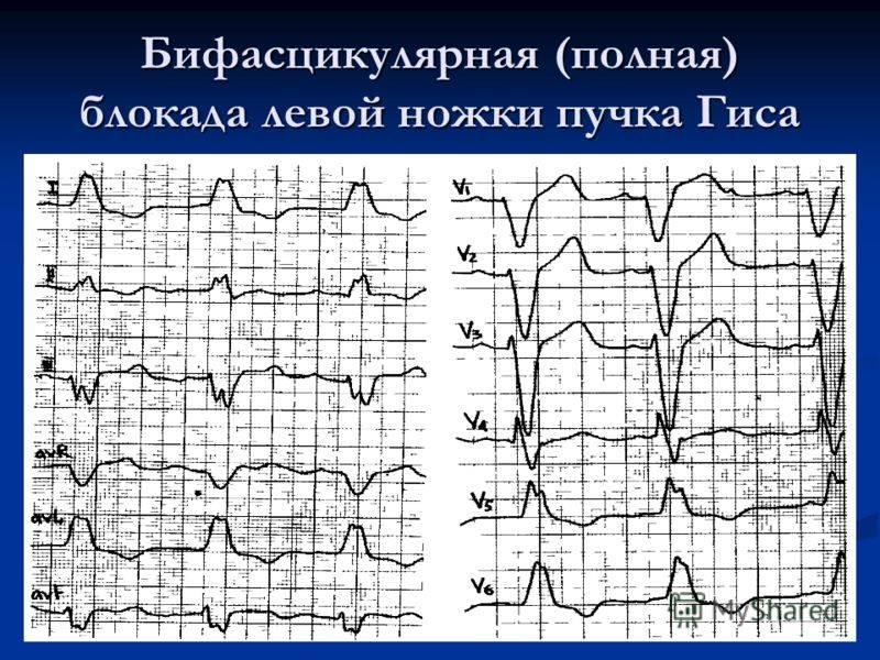 Нарушение проводимости сердца, лечение нарушения внутрижелудочковой проводимости сердца у взрослых