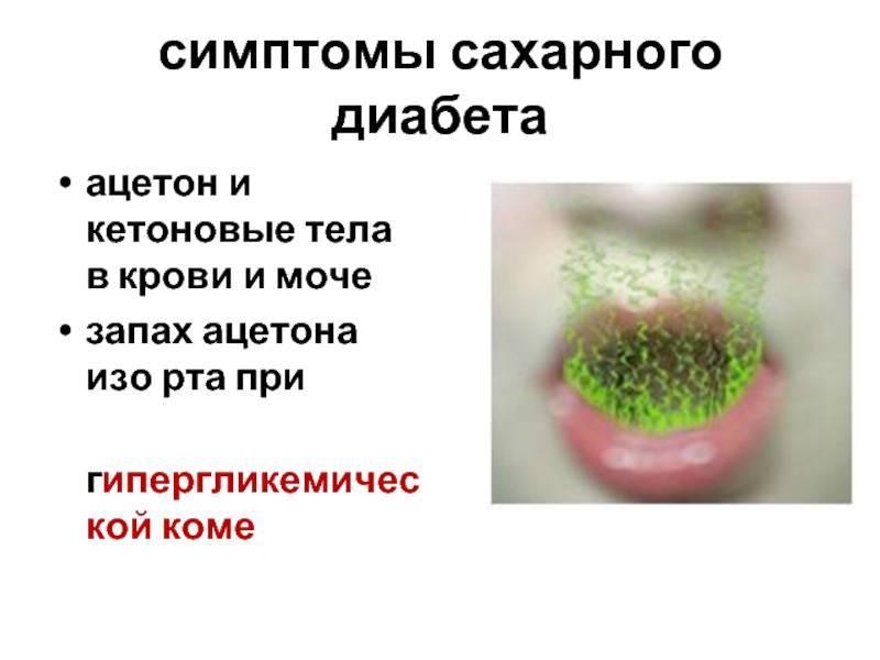 Причины неприятного запаха изо рта у ребёнка
