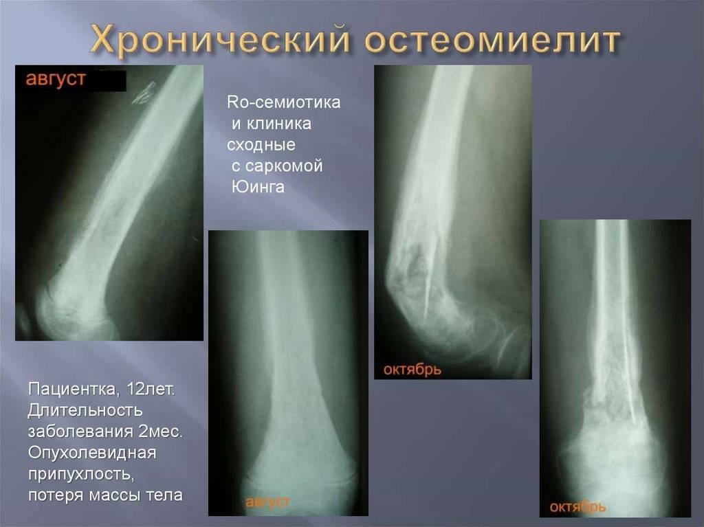 Остеомиелит — заболевания — справочники — медицинский портал «мед-инфо»