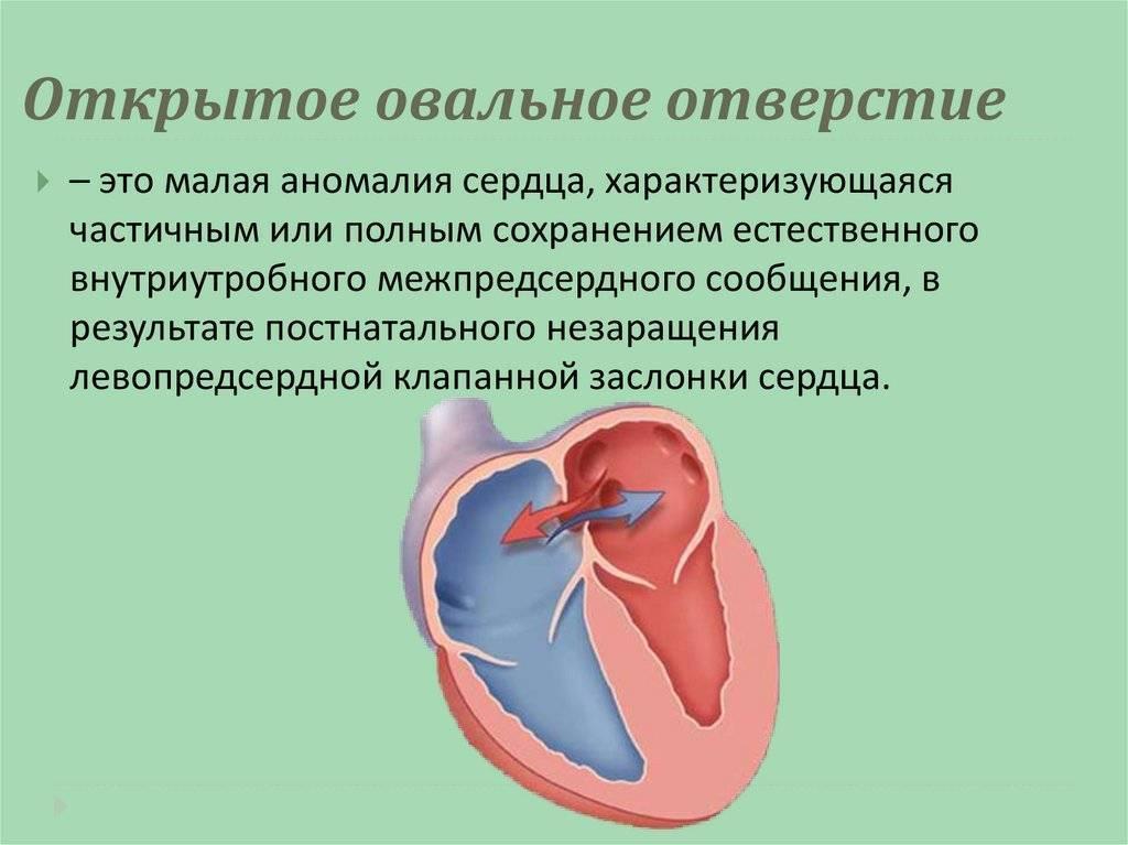 Открытый артериальный проток - лечение в отделении института амосова.