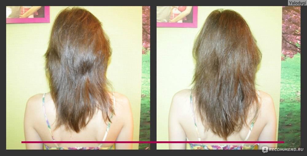 Что делать, если после родов выпадают волосы. почему выпадают волосы. врач трихолог