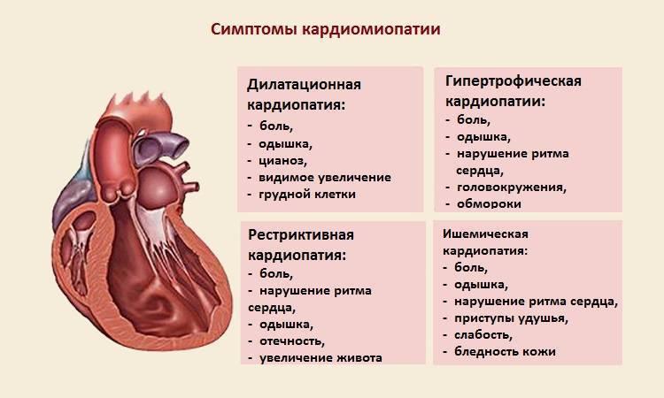 Дилатационная кардиомиопатия / заболевания / клиника эксперт