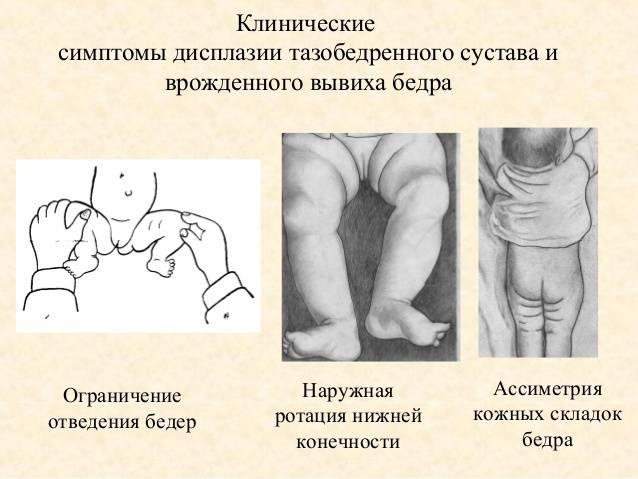Остеопороз суставов: лечение, симптомы, виды