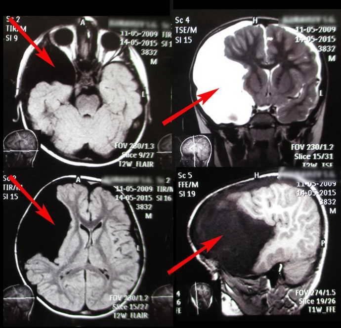 Что показывает и как делают кт головного мозга ребенку?