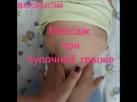 Пупочная грыжа и «щетинка» у новорожденного