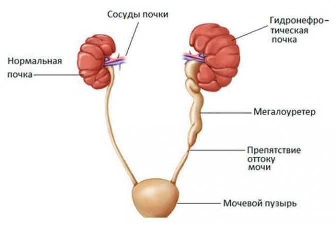 Синдром фрейли у детей: симптомы, лечение с помощью операции   компетентно о здоровье на ilive