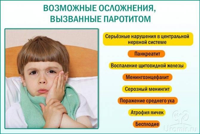 Паротит: формы, осложнения, симптомы, лечение | food and health