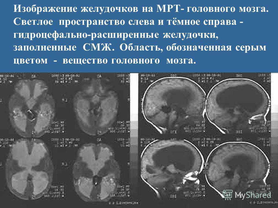 Современные подходы к диагностике и лечению злокачественных опухолей головного мозга у собак и кошек