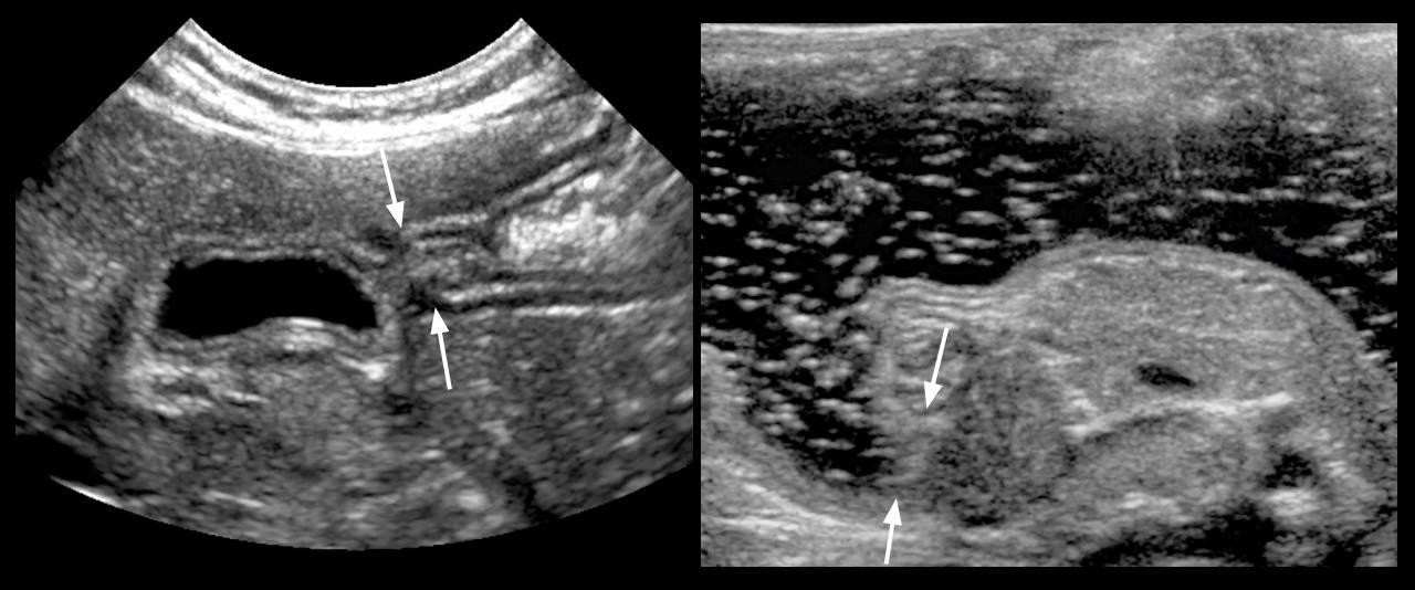 Основные клинические проявления при врождённом пилоростенозе и эффективные методы лечения