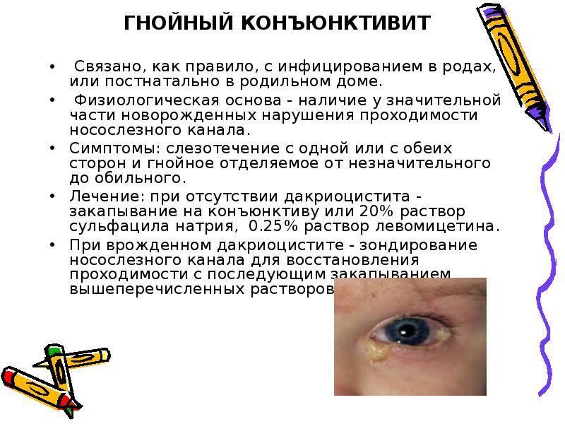 Чем лечить вирусный конъюнктивит у ребенка?