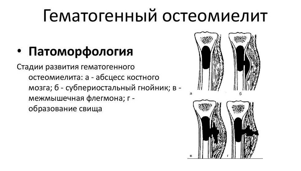 Остеомиелит челюсти: причины, симптомы и способы лечения остеомиелита челюсти