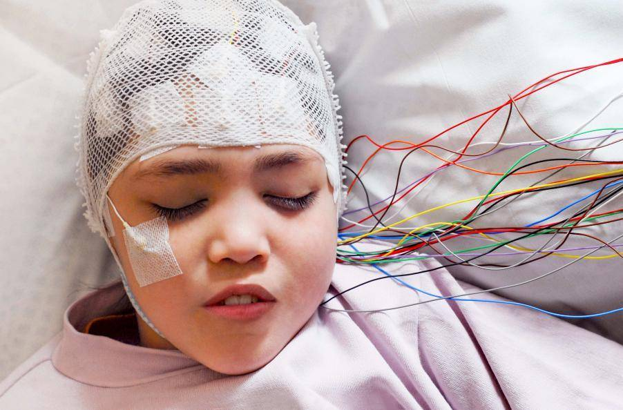 Ночной ээг мониторинг детям в москве   центр диагностики и лечения эпилепсии epihelp