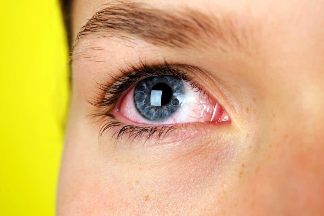 Травмы глаз у детей: причины, симптомы, диагностика, лечение | компетентно о здоровье на ilive