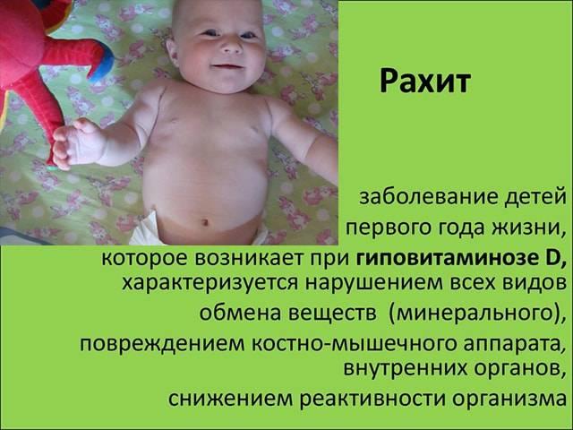 Все о рахите у грудных детей: симптомы, причины, лечение