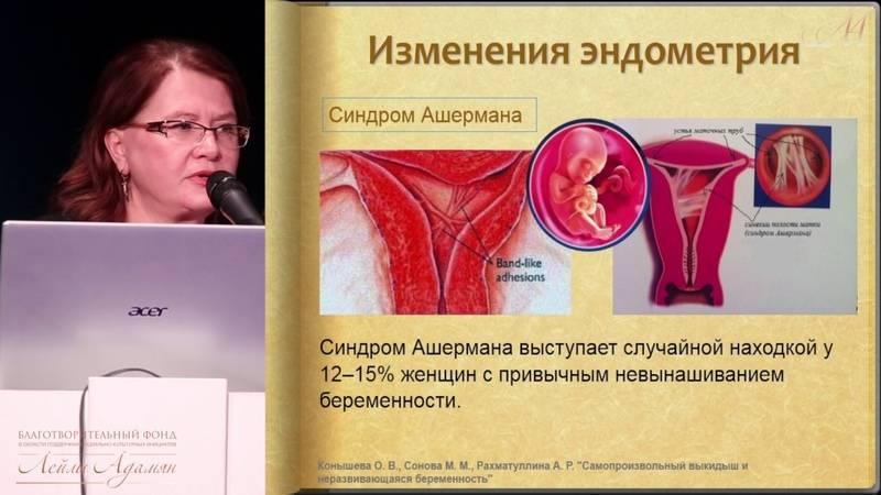Самопроизвольный аборт (выкидыш)