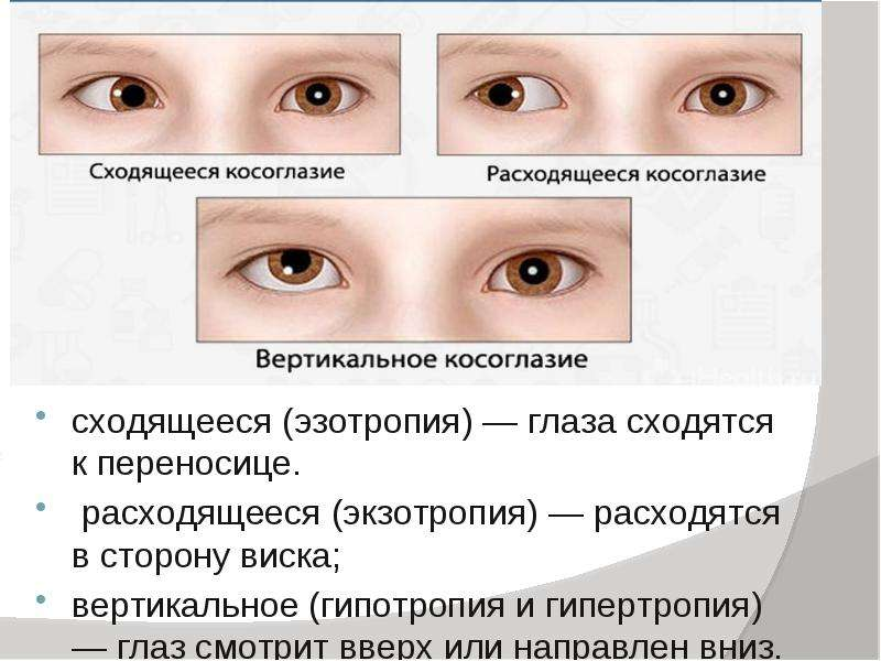 Как вылечить косоглазие в домашних условиях у ребенка - энциклопедия ochkov.net