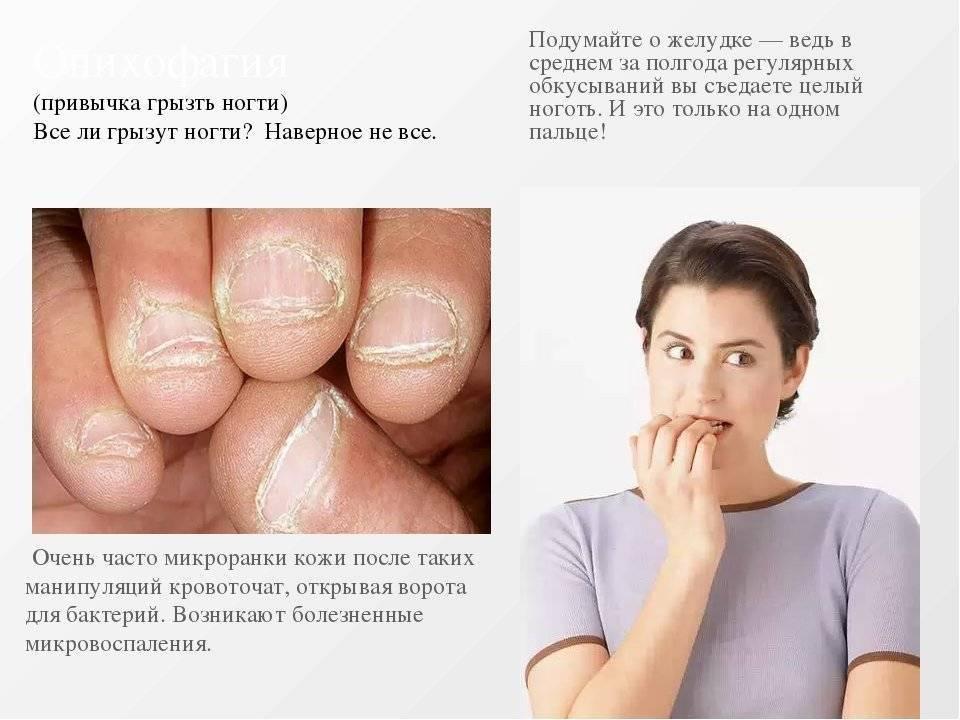 Как отучить ребёнка грызть ногти в разном возрасте: проверенные способы