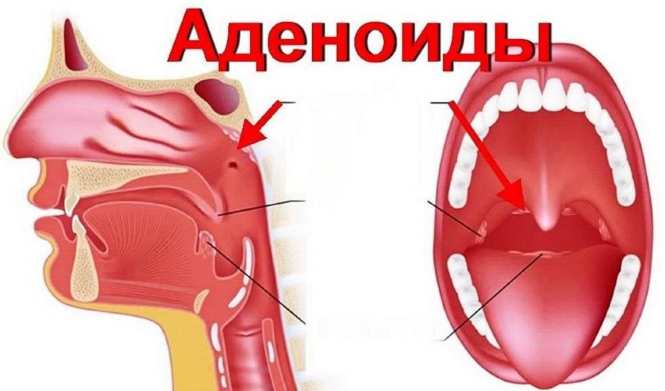 Удаление аденоидов у детей и взрослых: как проходит операции аденоидэктомии, показания, подготовка - причины, диагностика и лечение