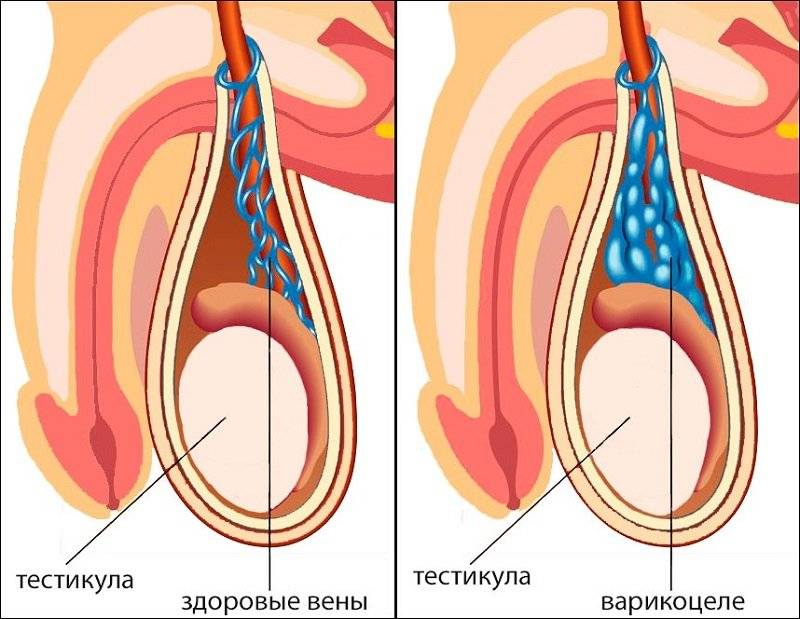 Фимоз  – причины, профилактика, лечение, операция. 4 степени фимоза.